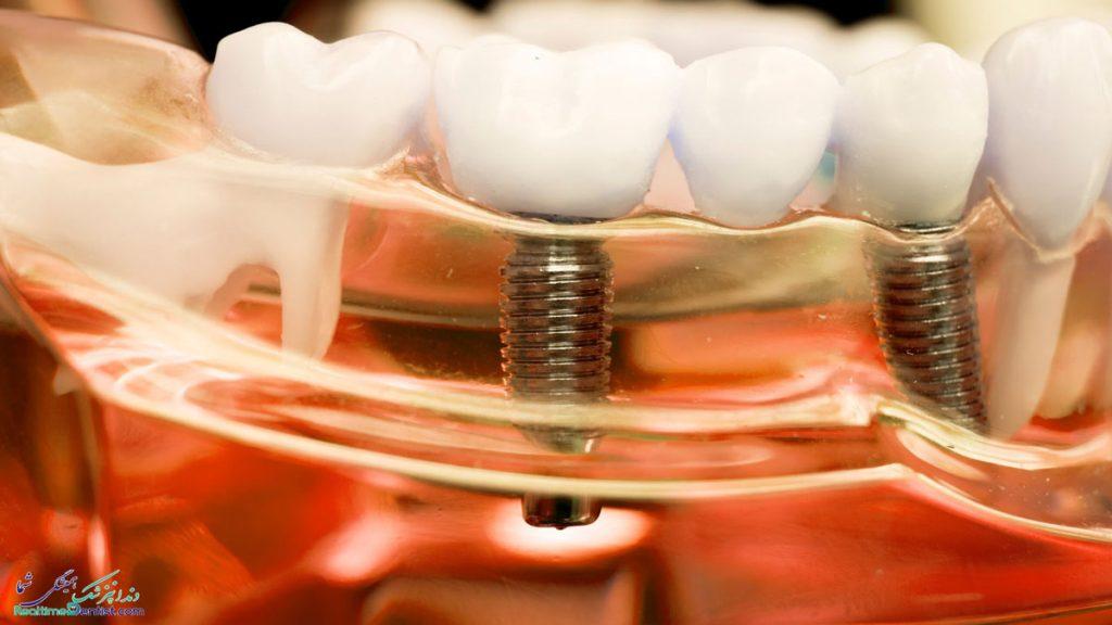دندانپزشک متخصص ایمپلنت دندان در اصفهان