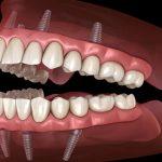دندانپزشک متخصص ایمپلنت دندان در بندرعباس