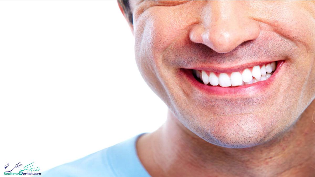 کامپوزیت دندان در کرمان