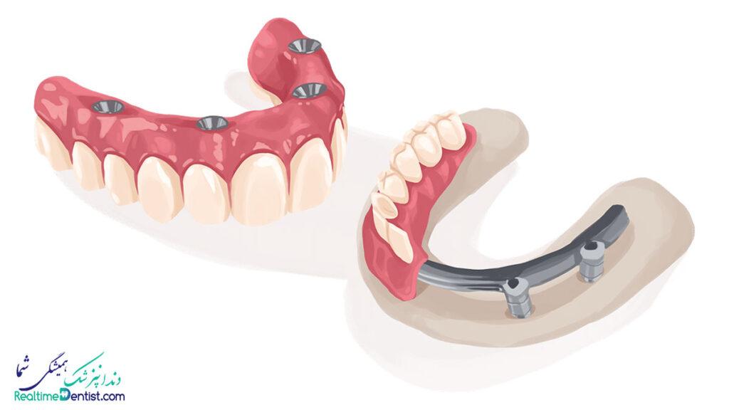 ایمپلنت دندان در رشت