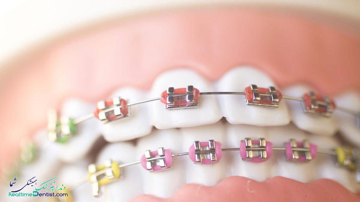 ارتودنسی دندان در تبریز