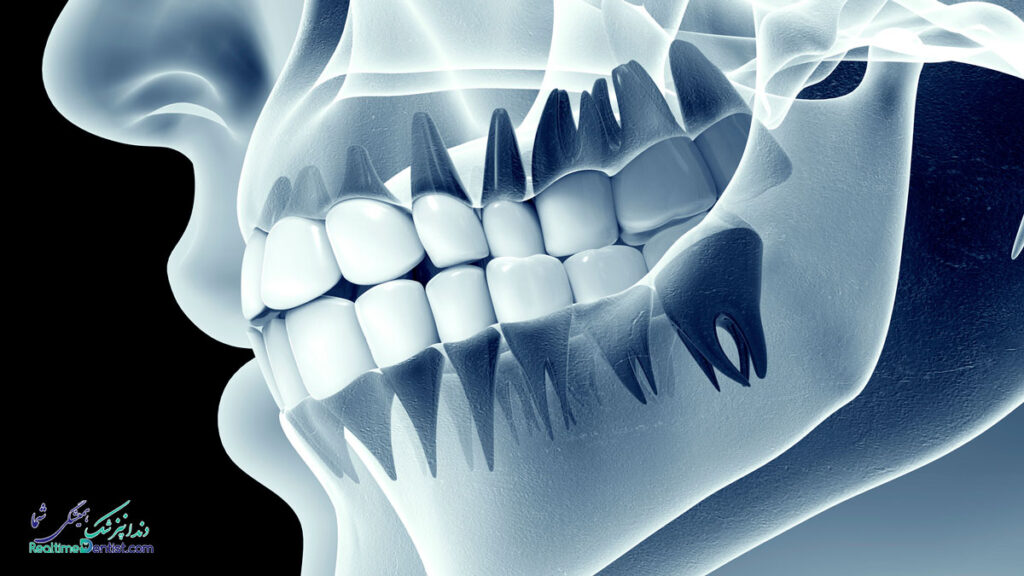 دندانپزشک در تبریز