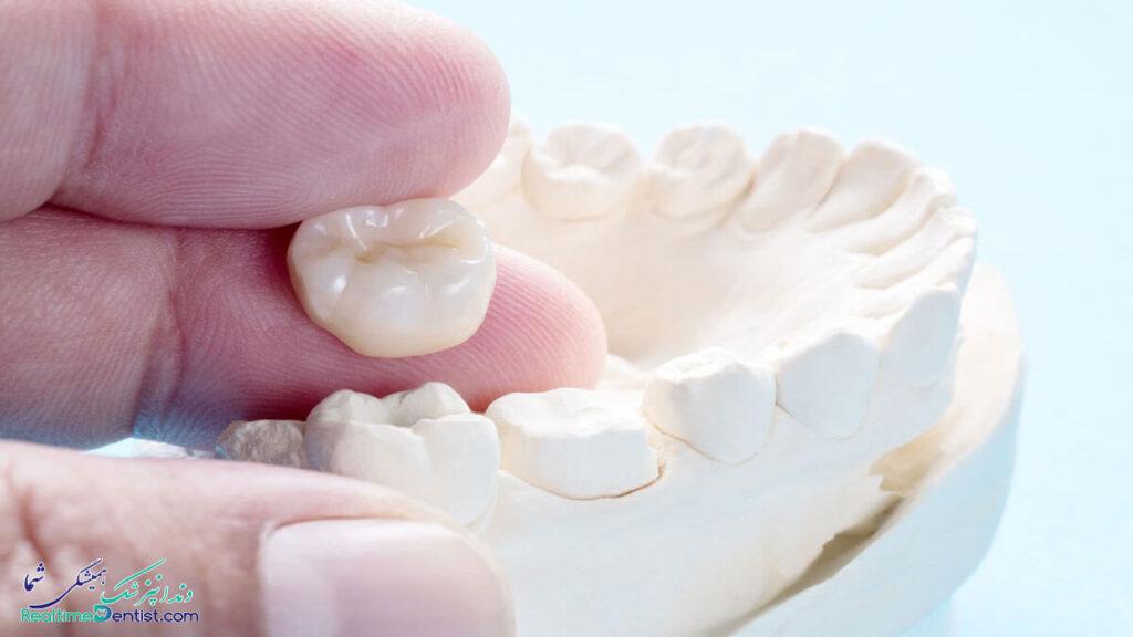متخصص پروتز دندان در رشت