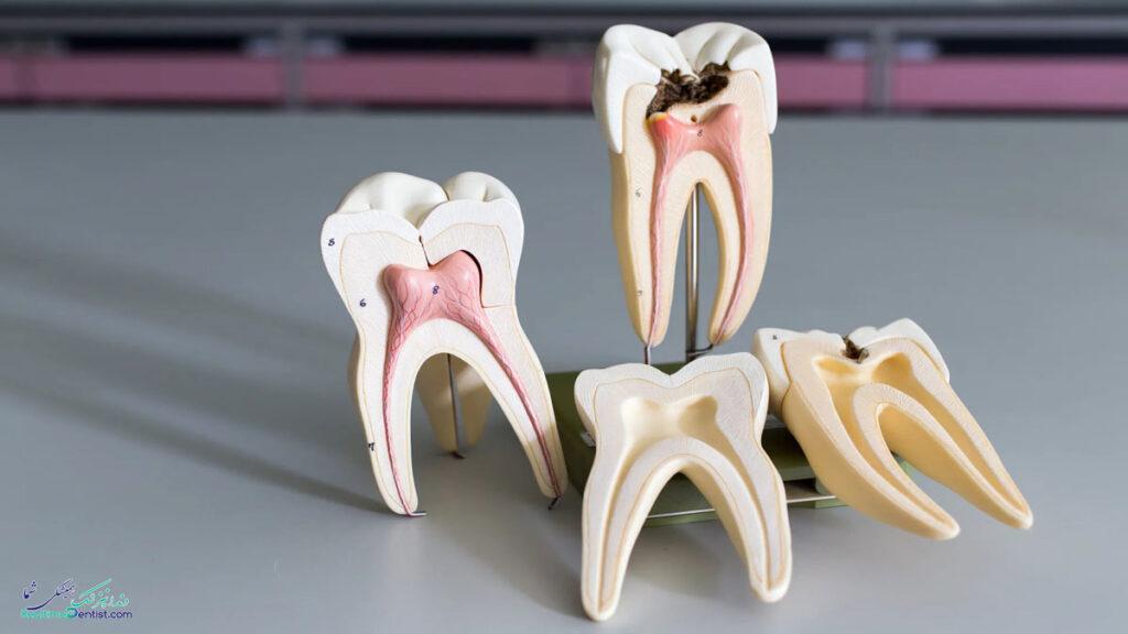 متخصص درمان ریشه دندان در تبریز