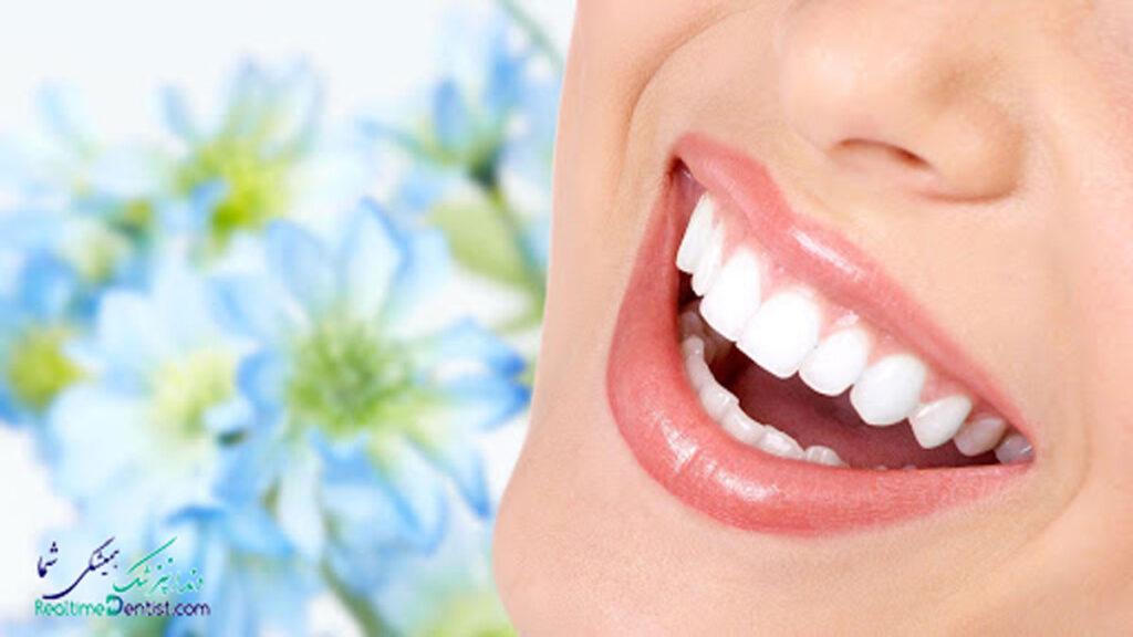 کامپوزیت دندان در رشت