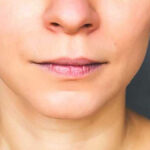 جراح فک و صورت در کرمان