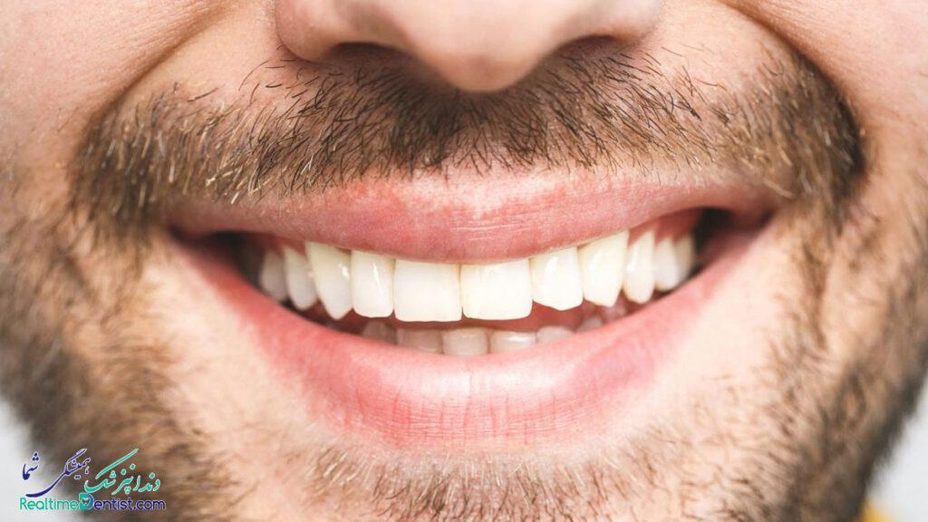دندانپزشک زیبایی در مشهد