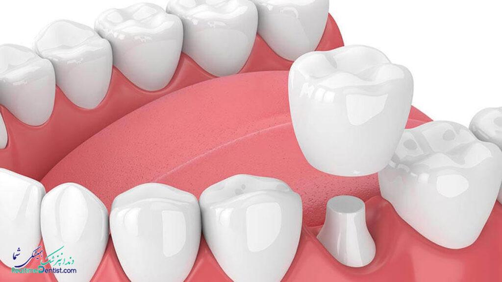 متخصص پروتز دندان در تبریز