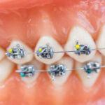 دندانپزشک متخصص ارتودنسی دندان در مشهد