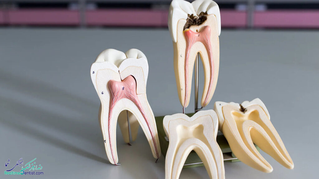 متخصص درمان ریشه دندان در مشهد