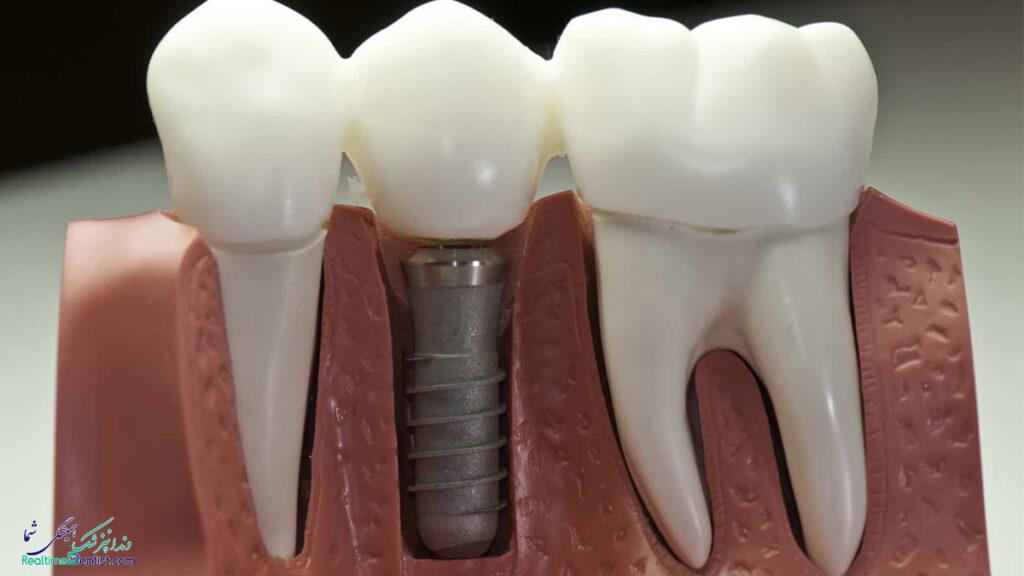 دندانپزشک متخصص ایمپلنت دندان در مشهد
