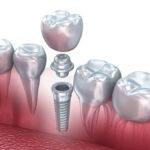 دندانپزشک متخصص کاشت دندان در مشهد