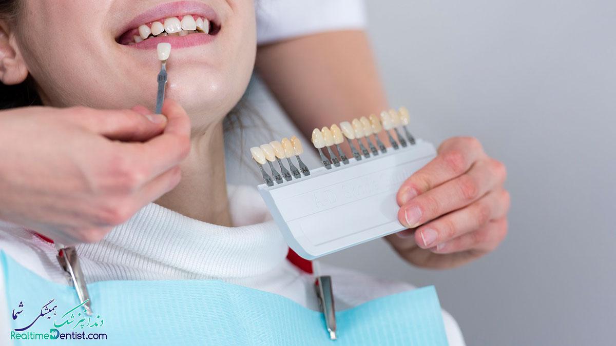 دندانپزشک زیبایی سعادت آباد