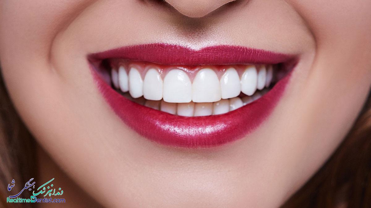 لمینت دندان در اصفهان