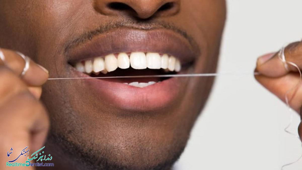 لمینت دندان در تبریز