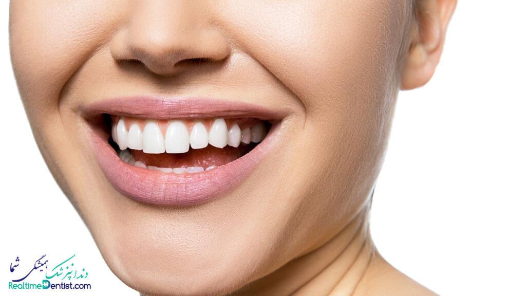 بهترین دندانپزشک در لامرد