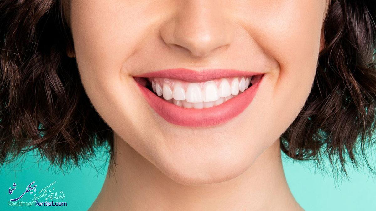 دندانپزشک ترمیمی و زیبایی در اصفهان
